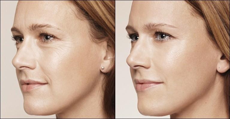 Эффект от биоревитализации фото до и после процедуры