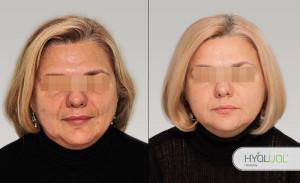 гиалуаль биоревитализация фото до и после