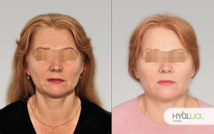 редермализация гиалуаль фото до и после
