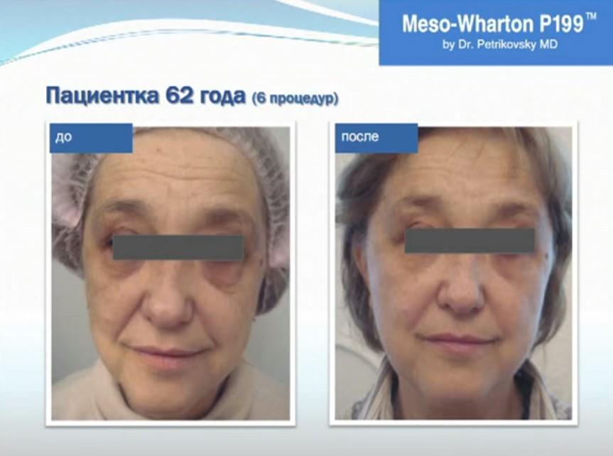 мезовартон фото до и после