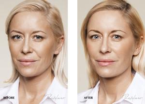 рестилайн витал фото до и после