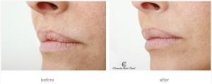 препарат restylane vital light фото до и после