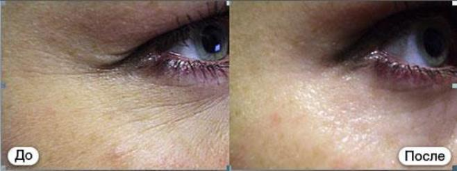 биостимуляция кожи skin фотографии до и после