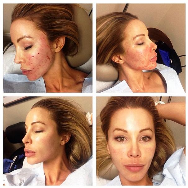 Lisa Hochstein плазмолифтинг лица до и после