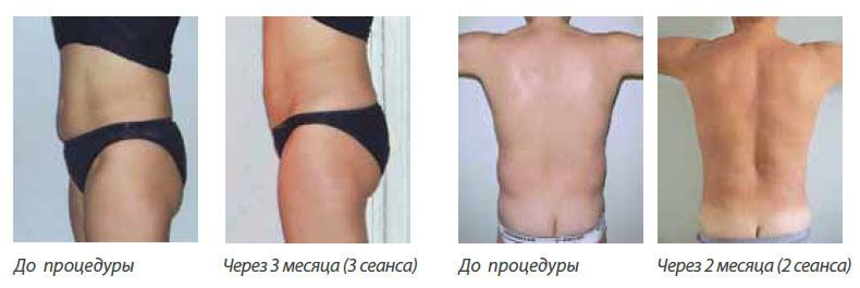 интралипотерапия aqualyx до и после