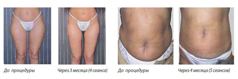 Акваликс отзывы и фото до и после