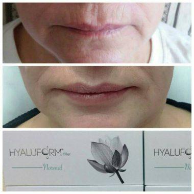 увеличение губ hyaluform filler normal
