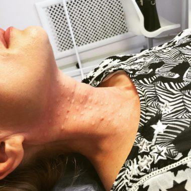 Инъекции препарата Мезолифт в шею для укрепления кожи