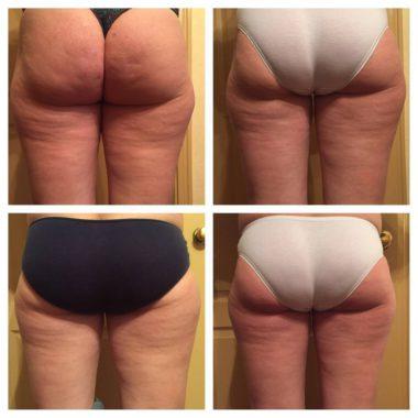 Уколы похудения с интервалом в одну неделю, фото до и после