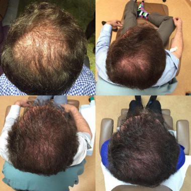 Отзывы о плазмолифтинге кожи головы  до и после