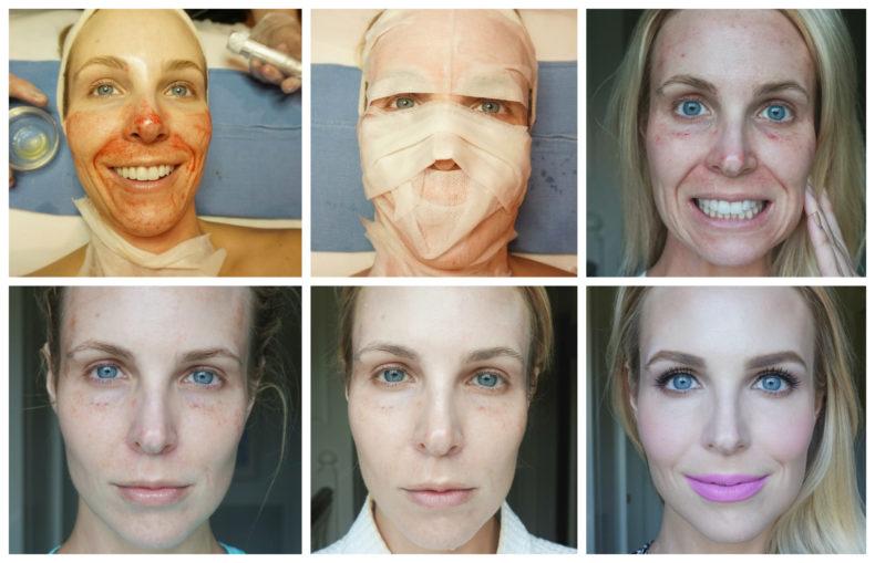 Плазмолифтинг лица до во время и после процедуры