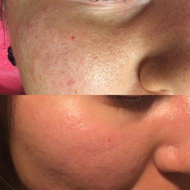 Плазмолифтинг до и после процедуры