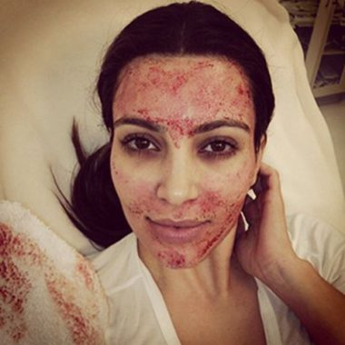 Плазмолифтинг лица #VampireFacial