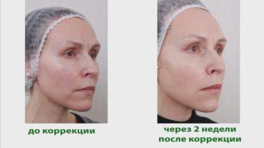 Биореволюметрия фото до и после