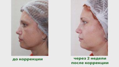 Фото до и после процедуры биореволюметрии лица