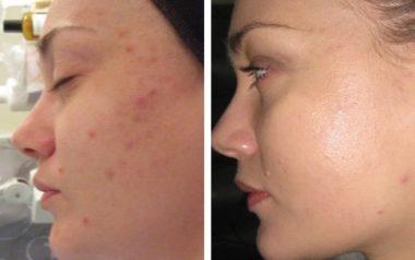 фотография до и после лазерного карбонового пилинга