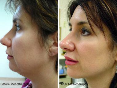 фото до и после мезотерапии для лица