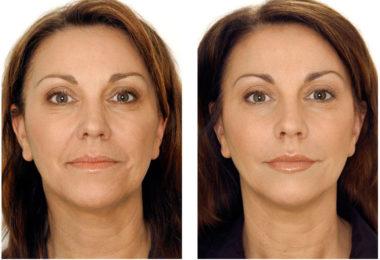 Отзывы и фото после мезотерапии лица