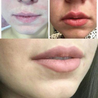 Фото до процедуры увеличения, сразу после и через неделю