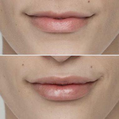 отзывы после увеличения губ гиалуроновой кислотой