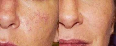 лазерное удаление сосудистых звездочек на лице