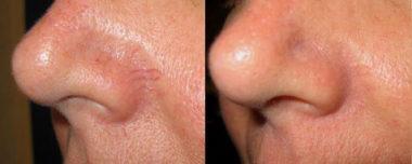 лазерное удаление сосудистых звездочек на лице фото до и после