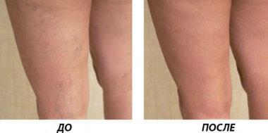 удаление сосудистых звездочек лазером на ногах отзывы до и после