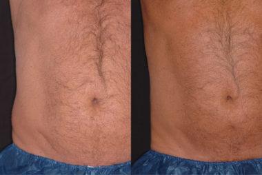 Фото до и после процедуры мезотерапии для живота