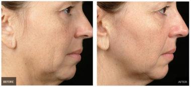 Фото до и после термолифтинга лица