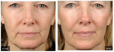 Фото до и после RF-лифтинга лица