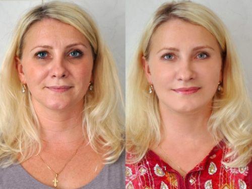 Эмбриобласт отзывы до и после