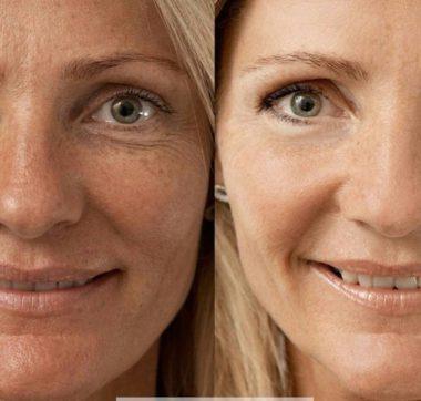 Фото до и после лазерной биоревитализации лица